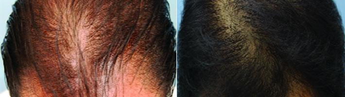 PRP - Platelet Rich Plasma Hair Growth